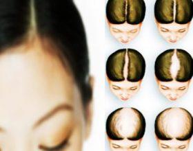 3 erëzat që parandalojnë rënien e flokëve dhe nxisin rritjen e shpejtë të tyre