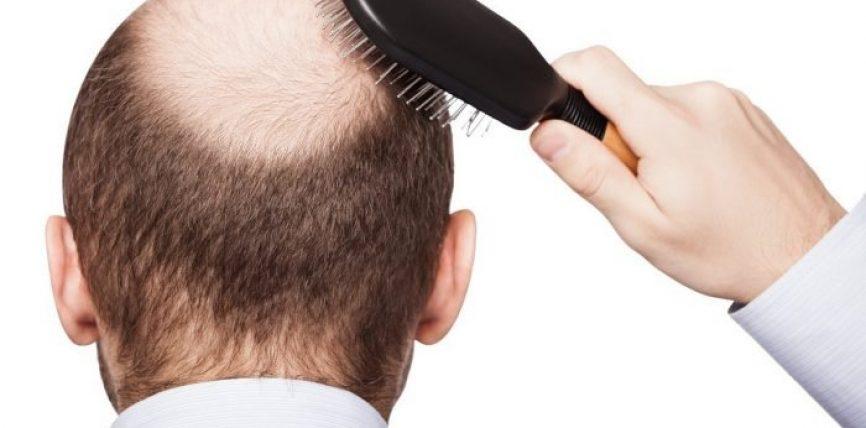 Sëmundjet që fshihen pas rënies së flokëve