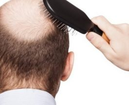Gjithcka që duhet të dini për rënien e flokëve