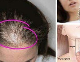 8 Arsyet e rënies së flokëve tek gratë dhe mënyrat e trajtimit
