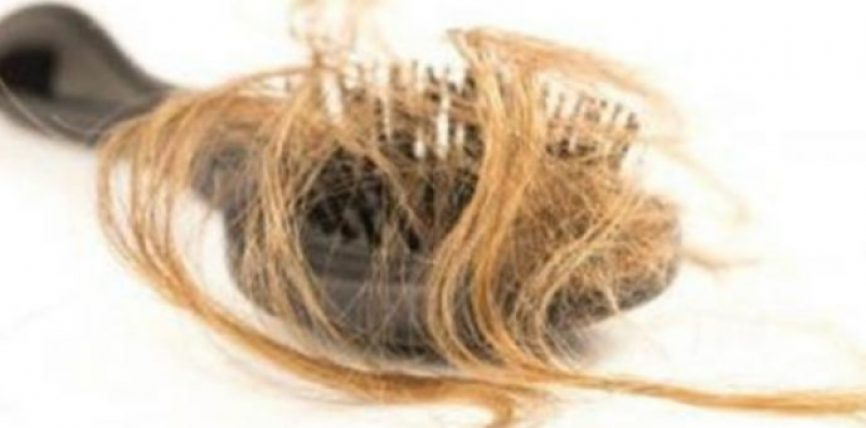 E pabesuseshme: Nëse flokët tuaj bien më shumë se normalisht ju duhet të lexoni këtë!