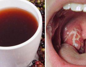5 metoda natyrore për të luftuar infeksionin në fyt dhe bajamet që të mos !