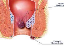 Si parandalohet formimi i hemorroideve?