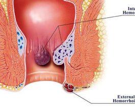 Hemorroidet, shkaqet dhe trajtimi i tyre