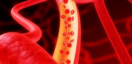 Katër lugë gjelle të këtij ilaçi dhe thoni lamtumirë arterieve të bllokuara dhe presionit të lartë të gjakut