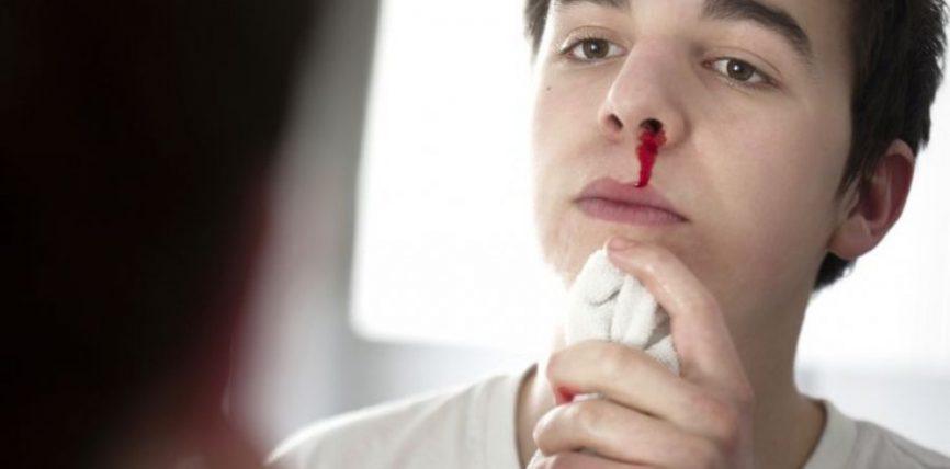 Rukje për gjakrrjedhjen nga hundët