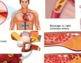 Me këtë ushqim i thoni mirupafshim kolesterolit, glukozës në gjak dhe yndyrnave