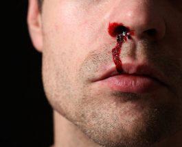 Rrjedhja e gjakut nga hunda