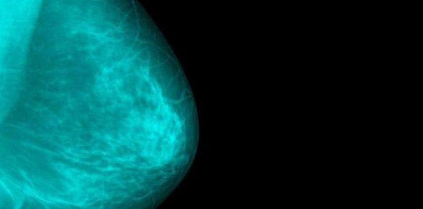 4 shenjat e kancerit te gjirit që nuk i keni dëgjuar kurrë më parë