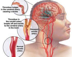 Si ta njohim një goditje ne tru?