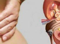 Cilat janë simptomat e gurëve në veshka dhe si kurohen?