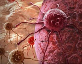 Fakte dhe statistika për kancerin