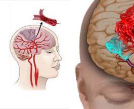 Pesë faktorë që shkaktojnë 80% e të gjitha goditjeve në tru