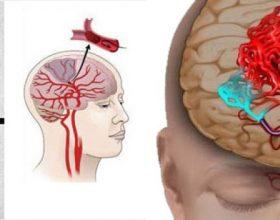 Mos i anashkaloni/ Pesë shenjat që paralajmërojnë goditjet në tru