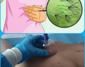 Trajtimi i Helicobacter Pylori-t me terapin e Kupave ( Hixhamen), mjaftê efektive pêr një problem si ky!