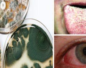 10 shenja paralajmëruese të helmimit nga myku që gjithkush duhet ti dijë!