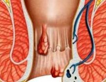 Parandalimi i hemoroideve