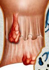 Hemorroidet