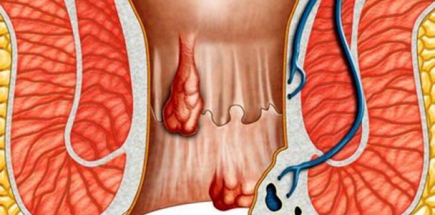 Çfarë janë hemorroidet?