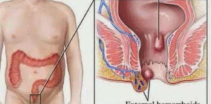 Hemoroidet, ja ilaçet natyrale për largimin e tyre