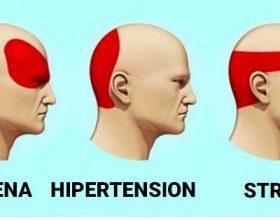Lloje të dhembjeve së kokës, që vijnë nga shkaktarë të ndryshëm, si