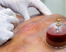 Hedhja e kupave (hixhami) nënkupton nxerrjen e gjakut të keq