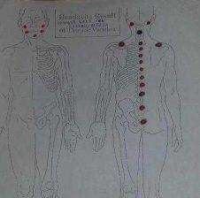 Sherimi i spondiliatrozes