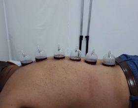 Dhimbja e shpines dhe trajtimi me Hixhame!