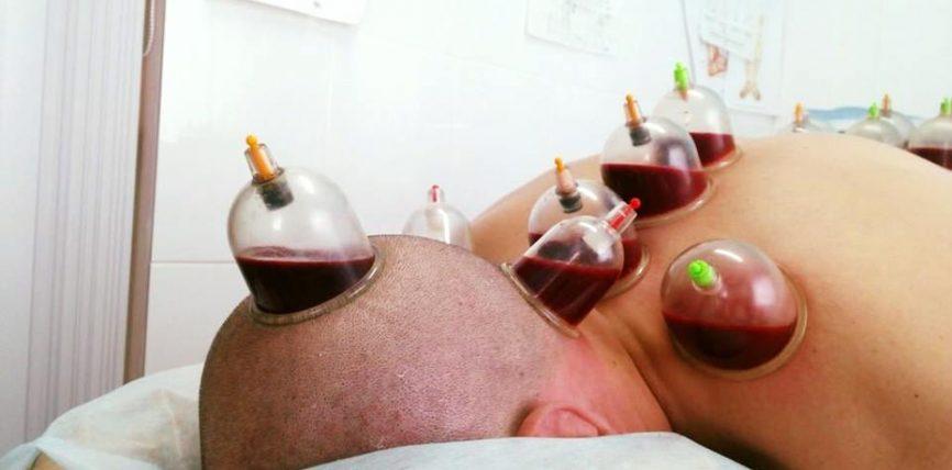 Hixhama dhe masazha i dëbojnë/përzënë exhinët nga trupi