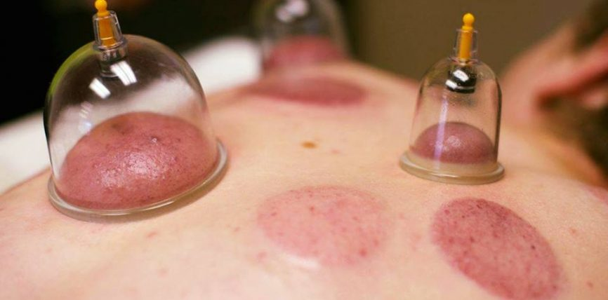 Sëmundjet dhe gjendjet e ndryshme që shërohen nëpërmjet hixhames jan