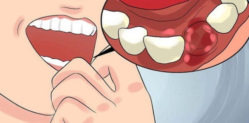 5 arsye pse mishërat e dhëmbëve pësojnë gjakderdhje.Mos e injoro mund te jete dicka serioze