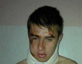 I riu shqiptar rrihet brutalisht nga një grup maqedonas