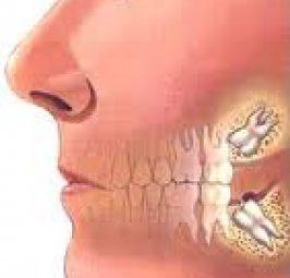 Pse duhen dhëmbët e pjekurisë (dhëmbët e syrit) dhe çfarë nuk dini për ta