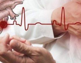 Si të shpëtoni dikë që po kalon para-infarkt