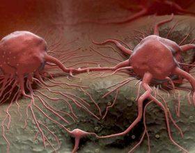 Ndaloni infeksionin që shkakton kancerin tek femrat
