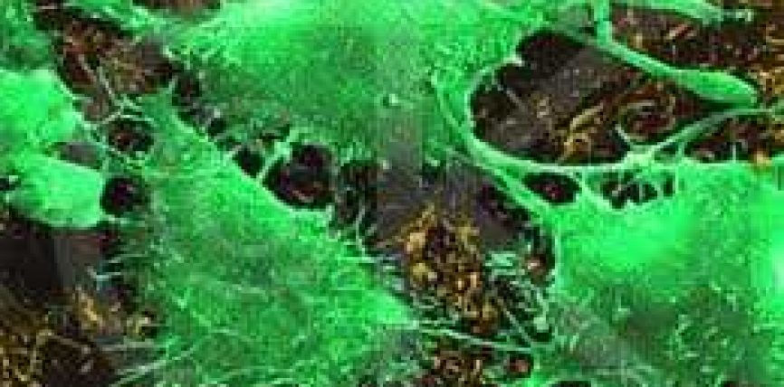 Si të zbulojmë sëmundjen e kancerit dhe metodat efikase për shërimin e tij?!