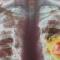 3 arsye se pse sëmundja e kancerit është duke u përhapur tejet mase