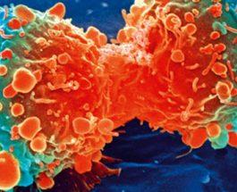 Këshilla për të shmangur rrezikun nga kanceri i lëkurës