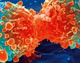 Forma më e shpeshta me të cilat shfaqet kanceri