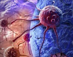 Shume prej te semureve me kancer jane te semure me mesysh- A e ke ditur ?