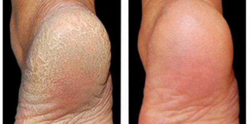 Era e pakëndshme e këmbëve – si ta eliminojmë?