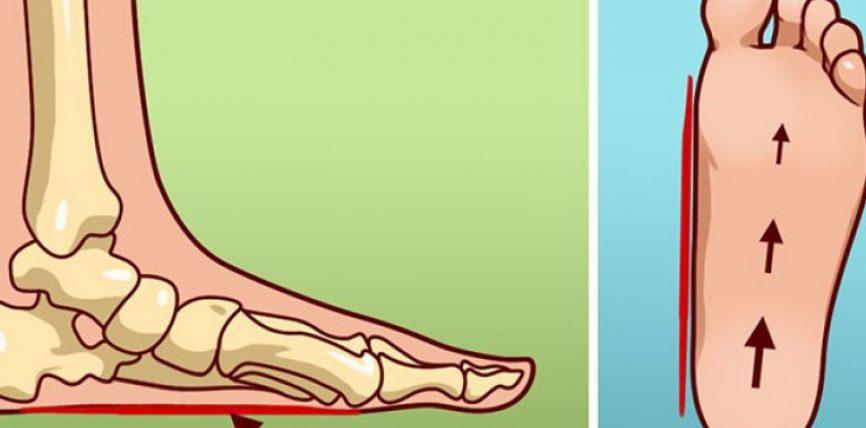 Çfarë nënkuptojnë mjekët me këmbë dystaban?
