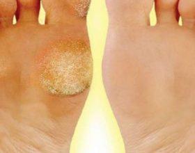 Hiqni kallot e këmbëve shumë thjeshtë vetëm me qepë