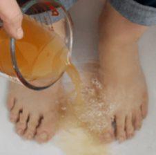 Mënyrat natyrale për të larguar erën e këmbëve