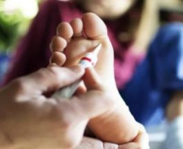 5 Mënyra natyrale për kurimin e mykut të lëkurës në shtëpi!