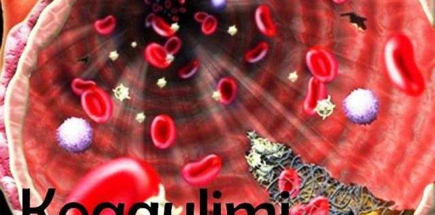 Vitamina K dhe ushqimet qe ndihmojne koagulimin e gjakut