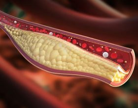 Ushqimet e lidhura me kolesterolin ne gjak