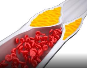 7 shkaktarët e kolesterolit të lartë në gjak