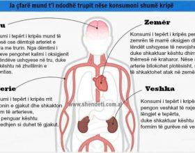 Si ndikon kripa në tru?