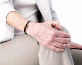 Si të shmangeni nga sëmundja e kyçeve të gjunjëve